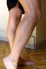 restless leg syndrome, legs